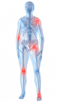 human joint points illustration knee pain pain management arthritis joint pain therapy joint pain png clip art